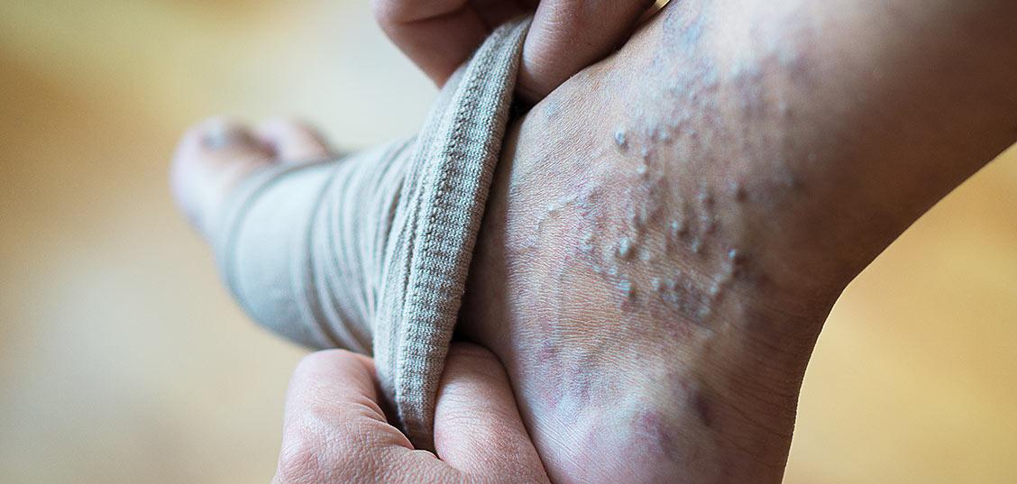 So kompresijske nogavice rešitev za krčne žile?